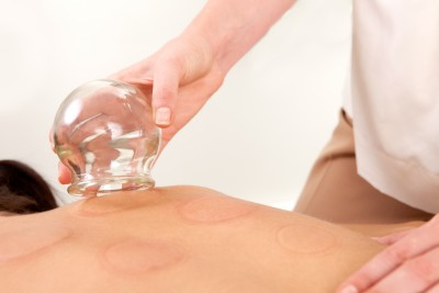 Massage Cupping Bodywork - Armory Massage Therapy - Syracuse NY